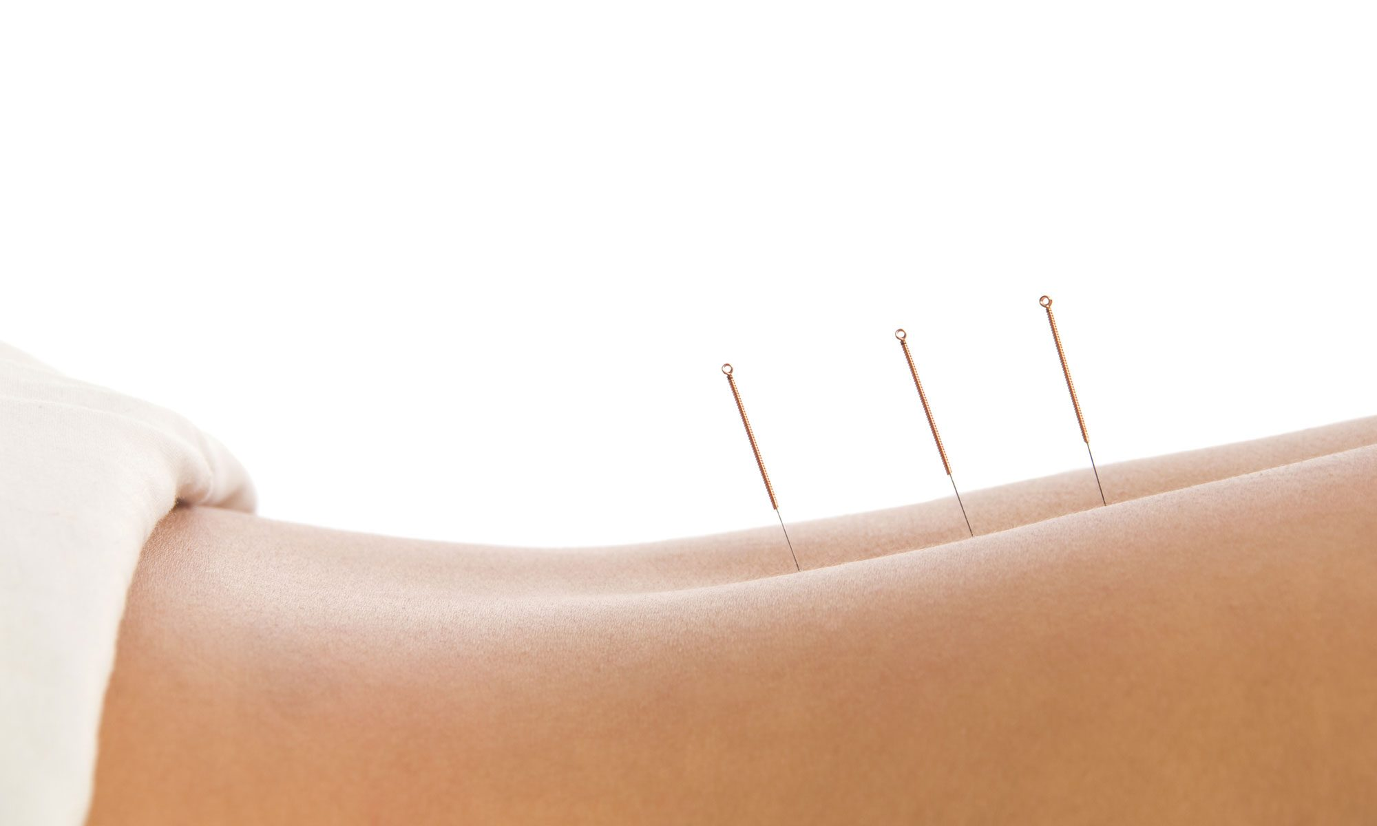 Points of Health Acupuncture